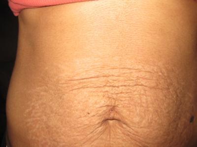 retendre la peau du ventre après accouchement