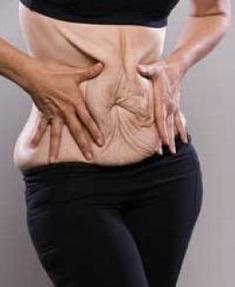 retendre la peau du ventre après régime