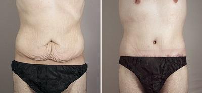 retendre la peau du bas ventre